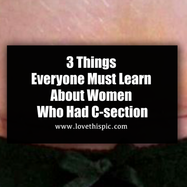 3 Things Everyone Must Learn About Women Who Had C-section