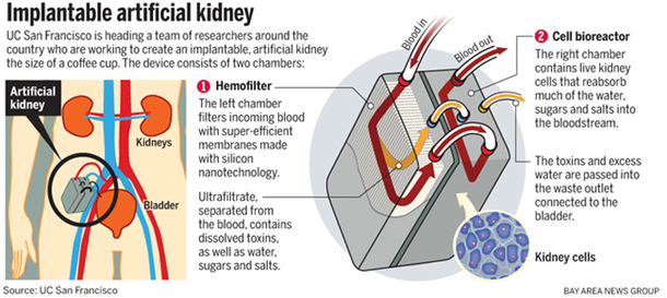 The World S First Artificial Kidney Is Going To Replace