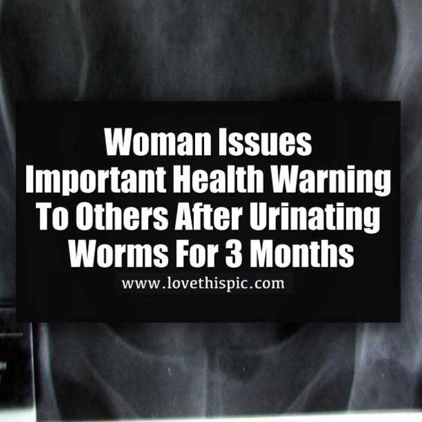 Woman Issues Warning To Others After Urinating Worms For 3